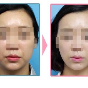 BNLSアルティメット注射(小顔注射)の値段が安いおすすめクリニック!効果が凄い【鼻・頬・顎】